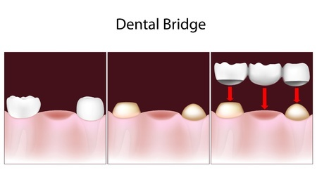 dental bridges in Austin
