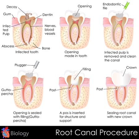 root canal therapy in austin