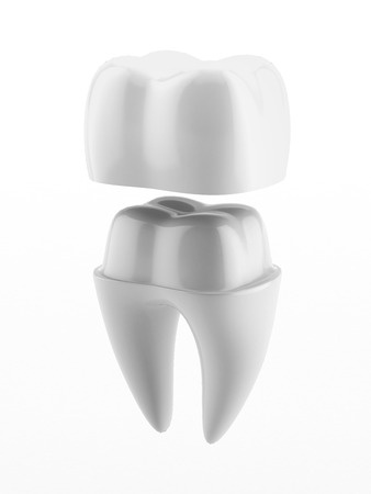 porcelain crowns in Austin